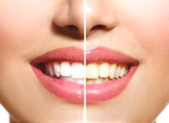 7 simple ways to whiten teeth naturally at home